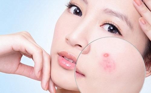 Ngẩn ngơ với những tác dụng của ngải cứu với da khiến ai cũng bất ngờ 2