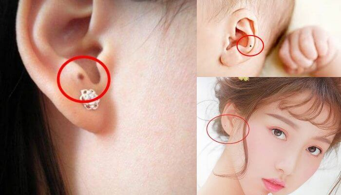 Có nên tẩy nốt ruồi ở tai không còn tùy thuộc theo quan niệm mỗi người