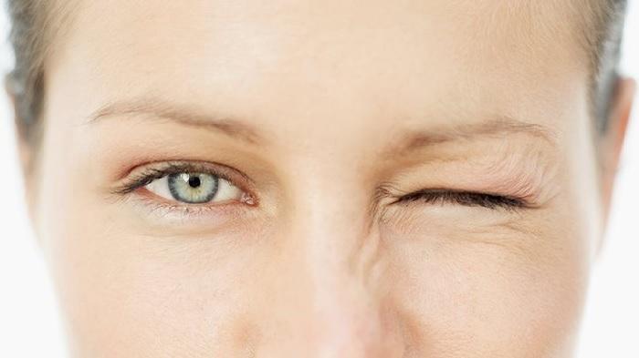 Nháy mắt trái nữ là hiện tượng phổ biến