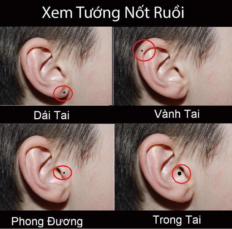 Giải mã ý nghĩa nốt ruồi ở tai phụ nữ và đàn ông