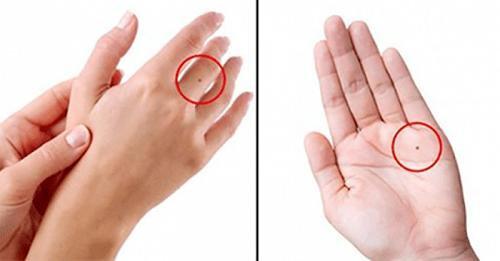 Tìm hiểu về ý nghĩa của nốt ruồi son