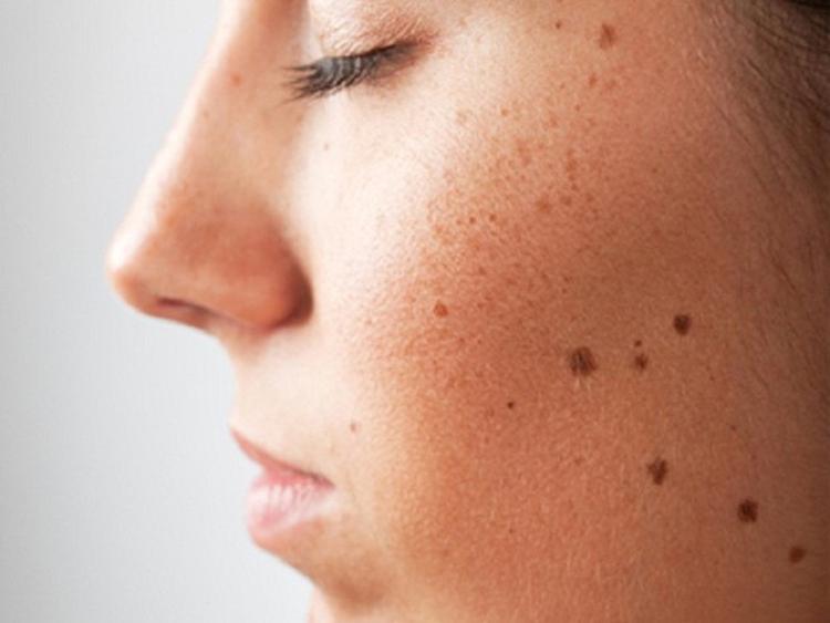 Nốt ruồi trên mặt và giải mã ý nghĩa