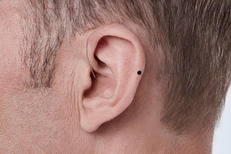 Nốt ruồi ở vành tai đàn ông