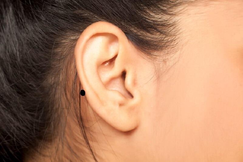 Nốt ruồi ở sau tai phụ nữ