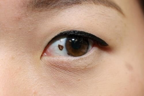 Nốt ruồi ở trong mắt phụ nữ