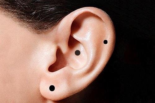 Nốt ruồi son ở tai