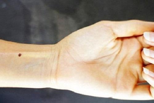 Nốt ruồi ở cổ tay trái nữ