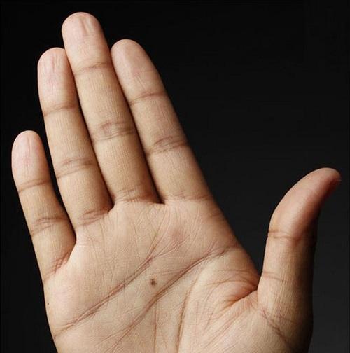 Nốt ruồi ở lòng bàn tay phải nữ giới